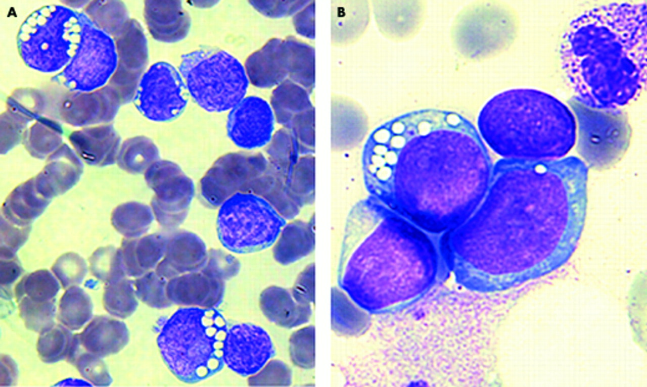 Adults treatment for leukemia in