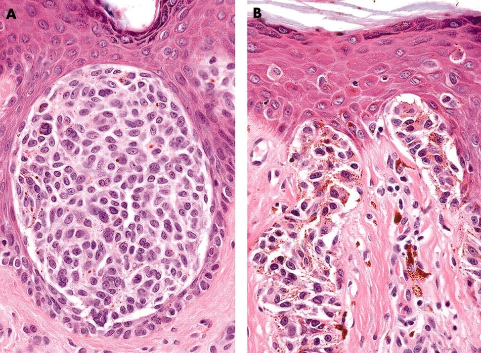 Junctional Nevus Histology