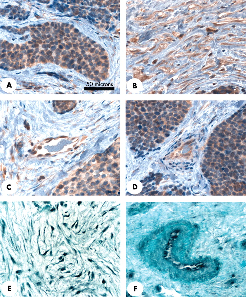 Expression Of Connective Tissue Growth Factor CCN2 In Desmoplastic