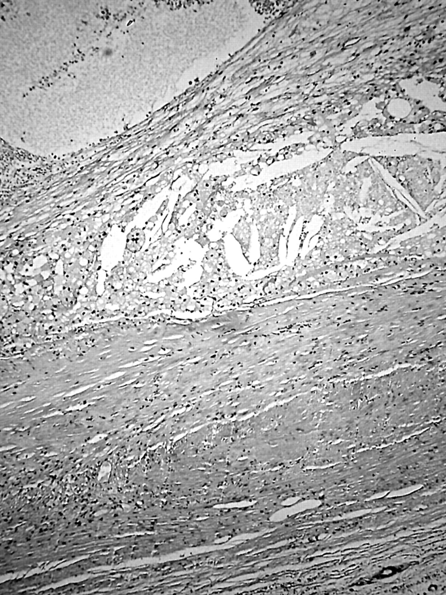 Prognostic relevance of extensive necrosis in renal cell