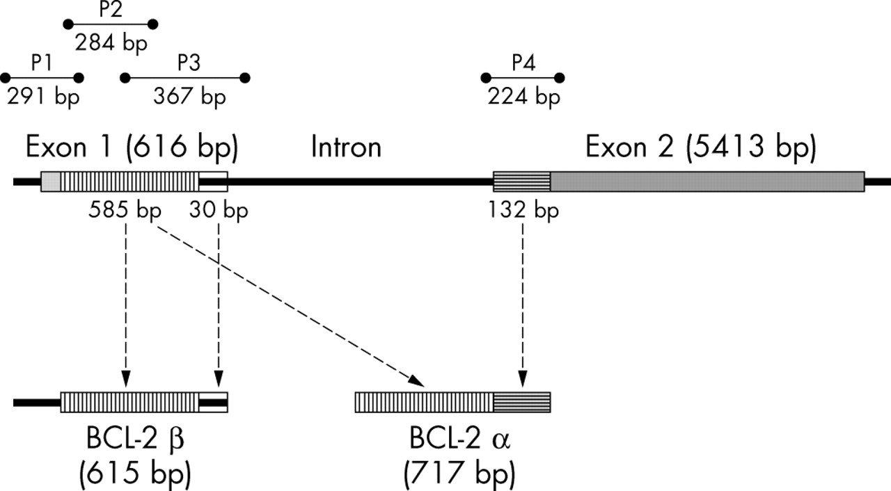loss of bcl 2 in the progression of oral cancer is not attributable