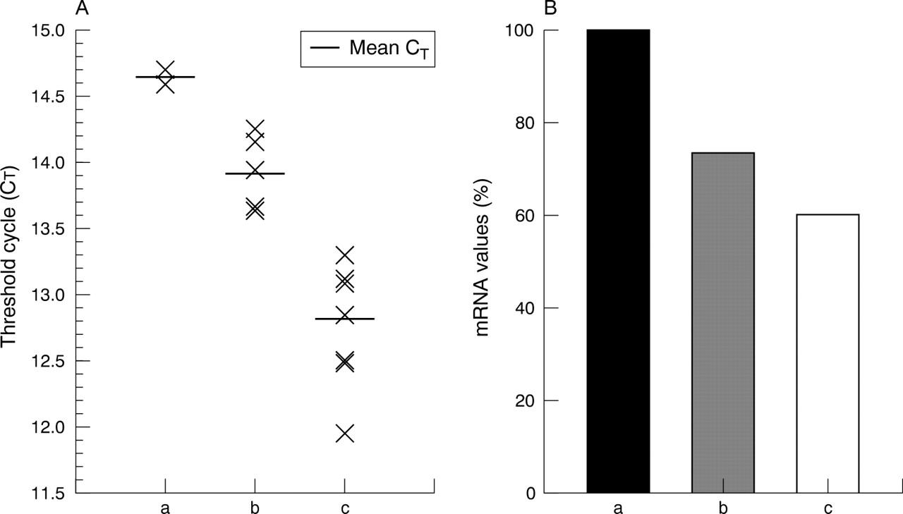 A novel frameshift mutation (+G) at codons 15/16 in a β0 ...