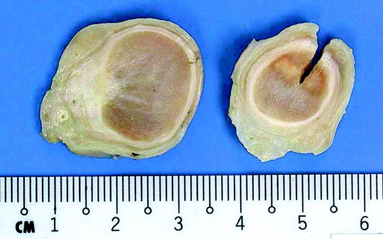 Rosai Dorfman Disease Of The Testis An Unusual Entity That Mimics