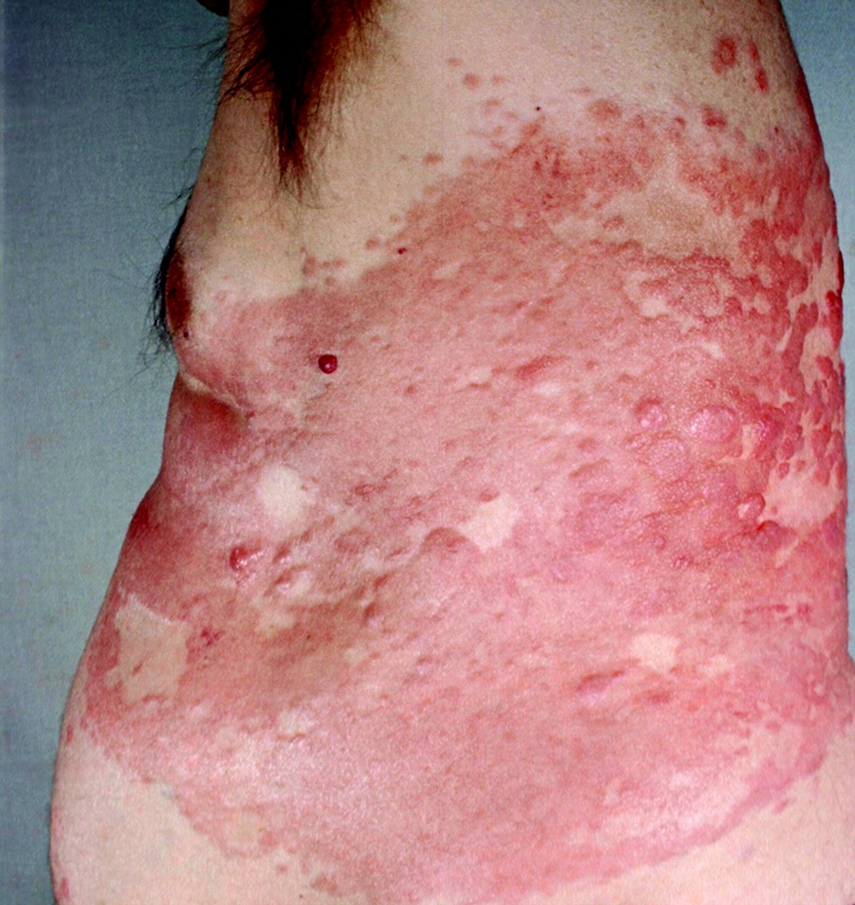 Lymphoproliferative Lesions Of The Skin