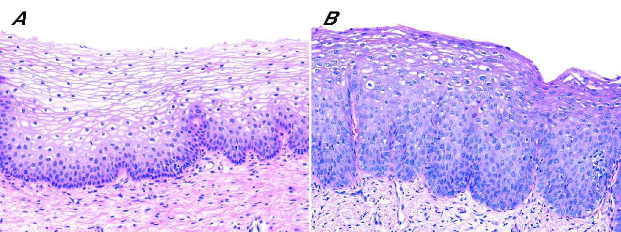 squamous  intraepithelial lesion