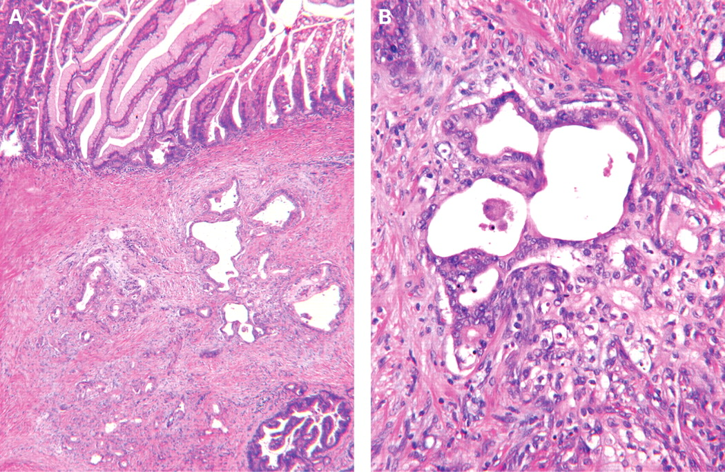 intraductal papillary mucinous neoplasms of the pancreas  clinical and pathological features and
