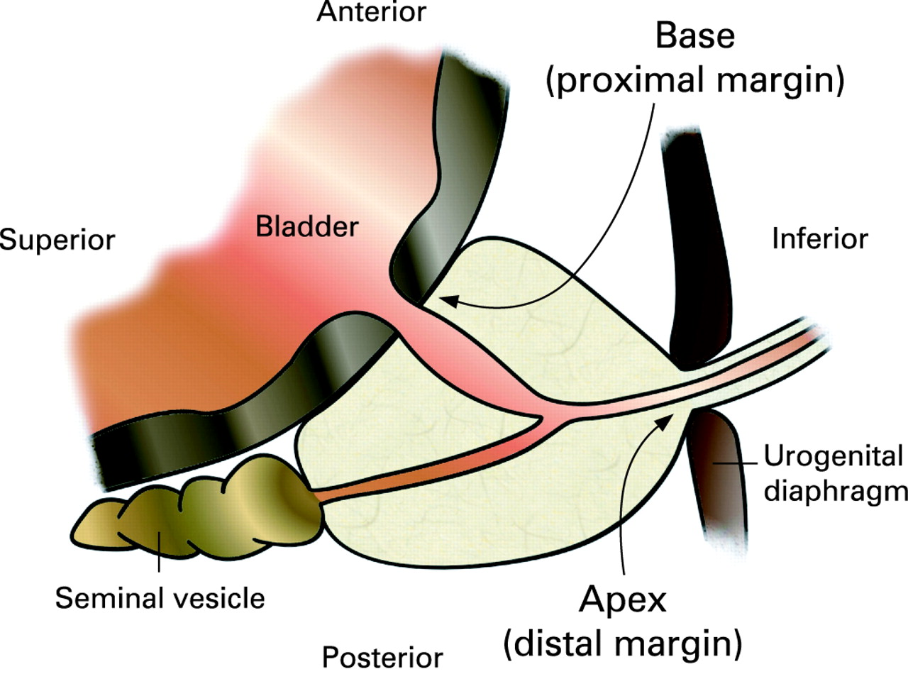 Guidelines For The Macroscopic Processing Of Radical Prostatectomy