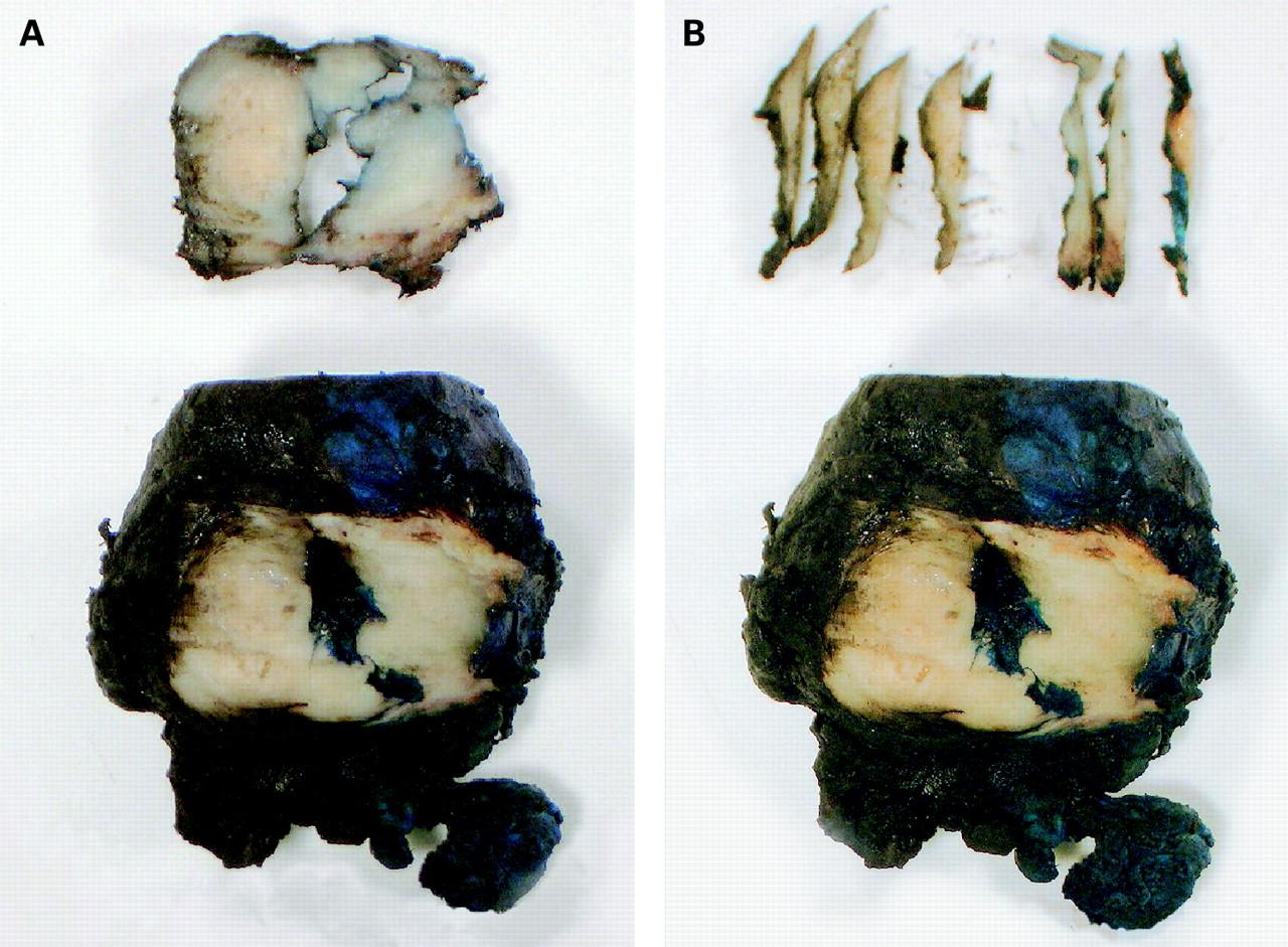 jaroda facial margins of ureter