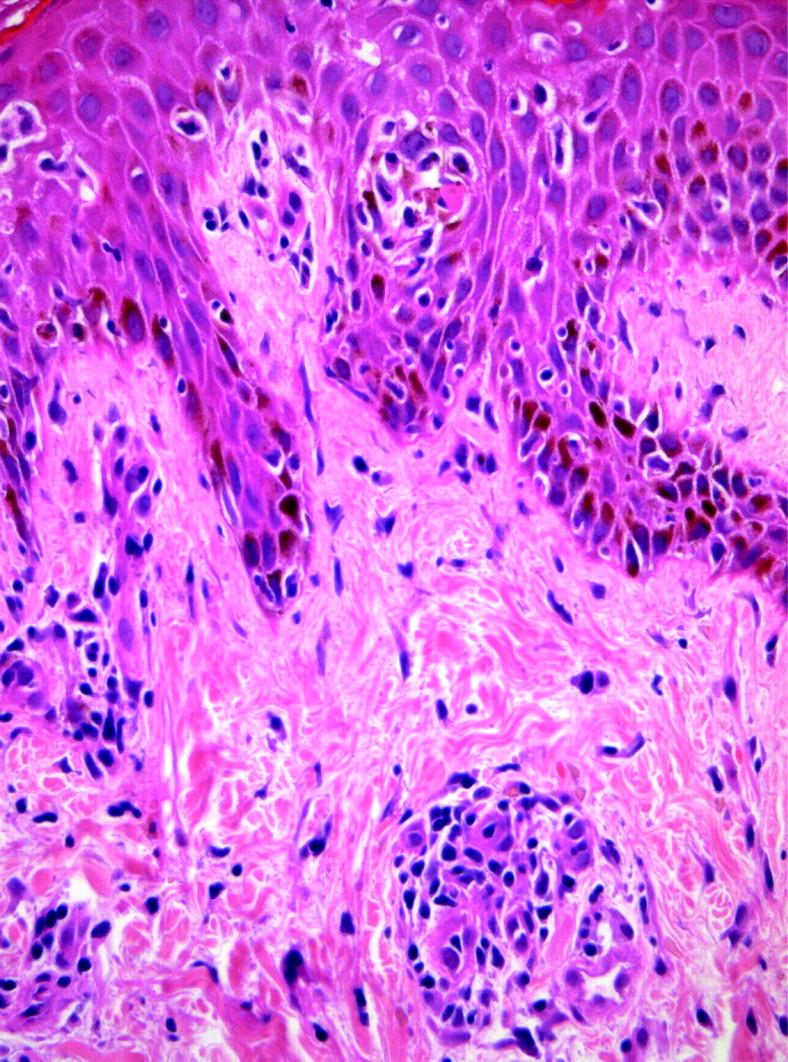 Pathology Outlines Hiv