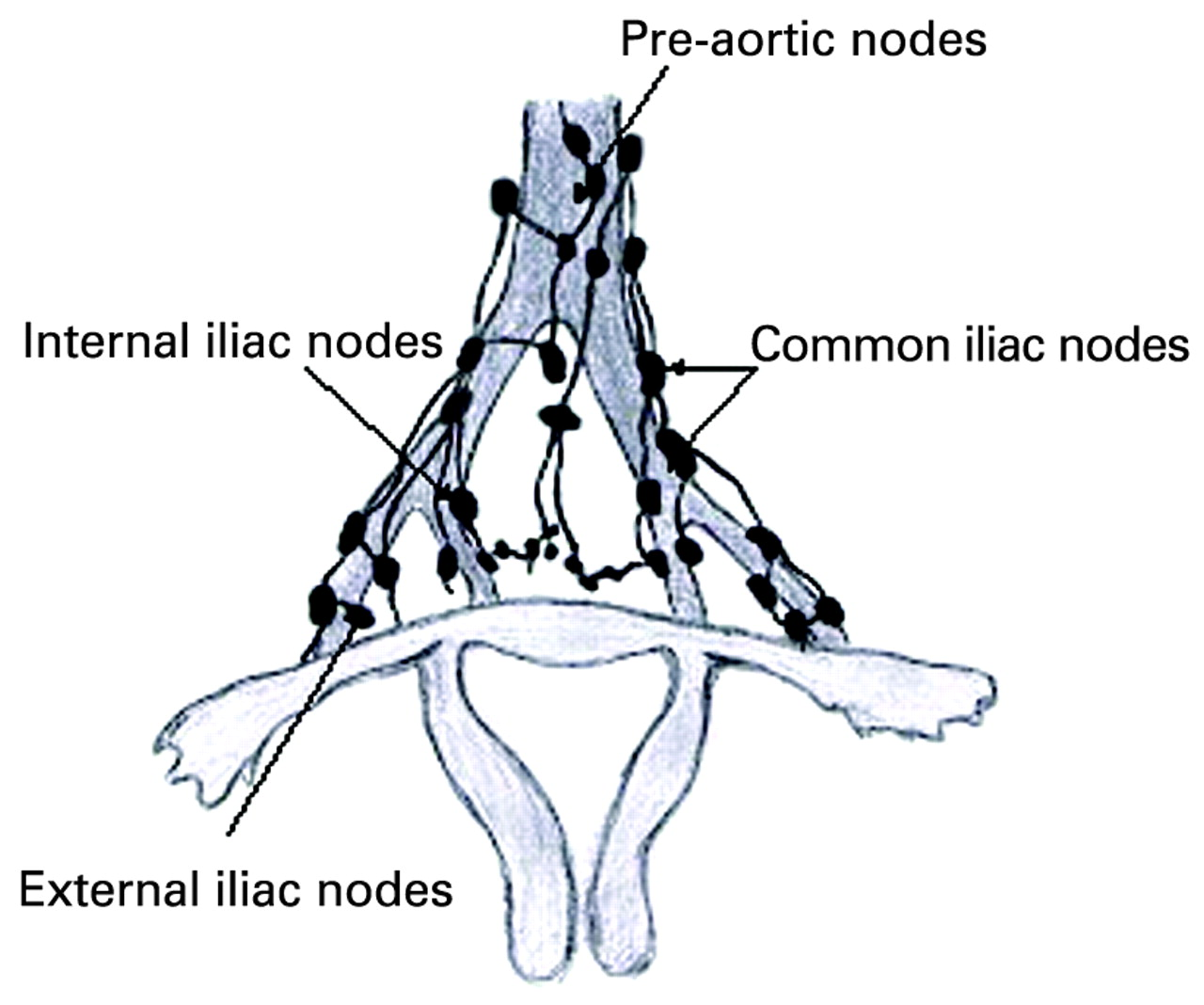 Assessment Of Sentinel Lymph Node In Cervical Cancer Review Of