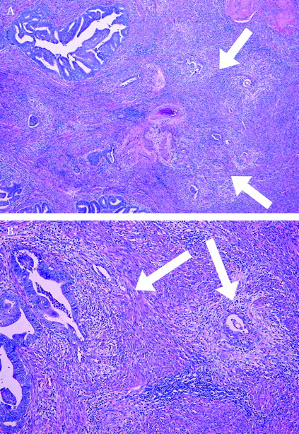 kras mutation and microsatellite instability in endometrial adenocarcinomas showing melf