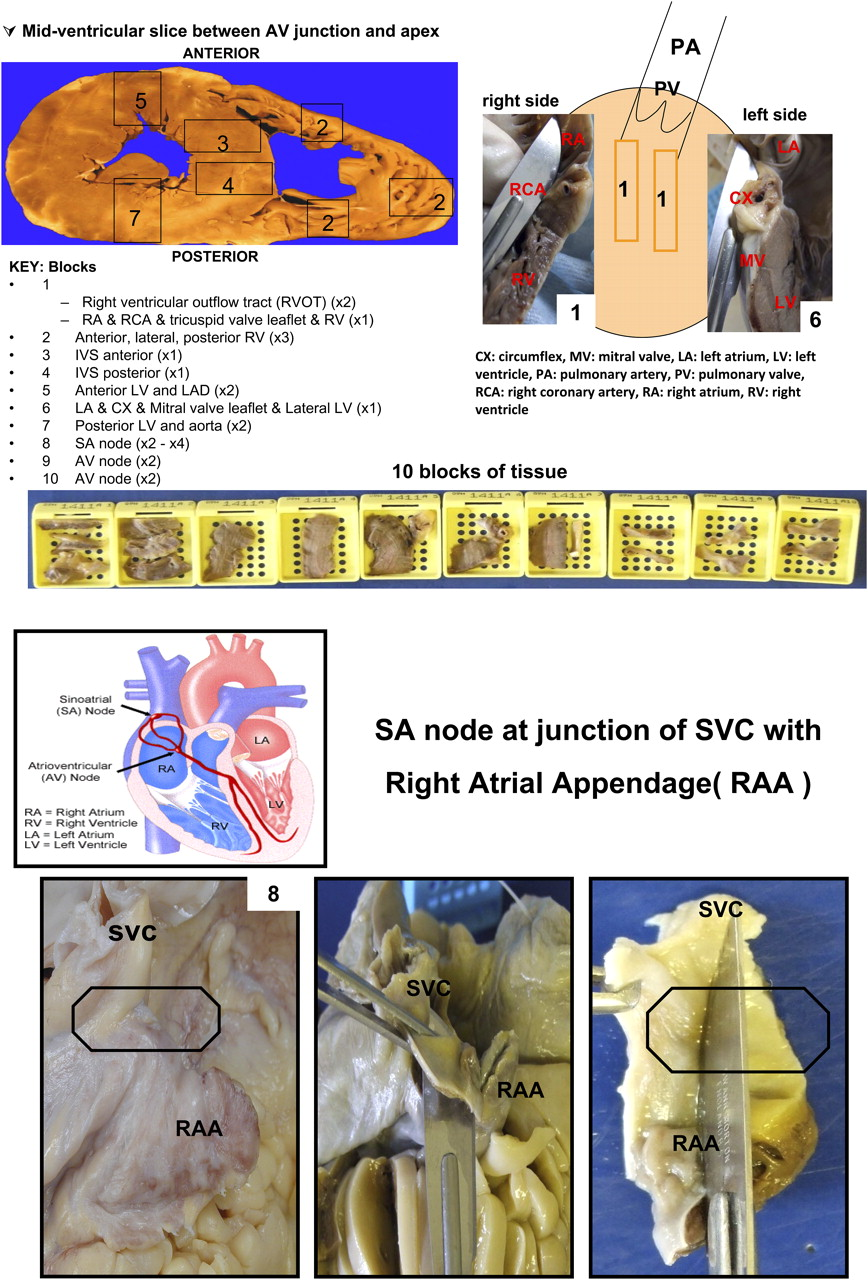 Approach to the cardiac autopsy   Journal of Clinical Pathology
