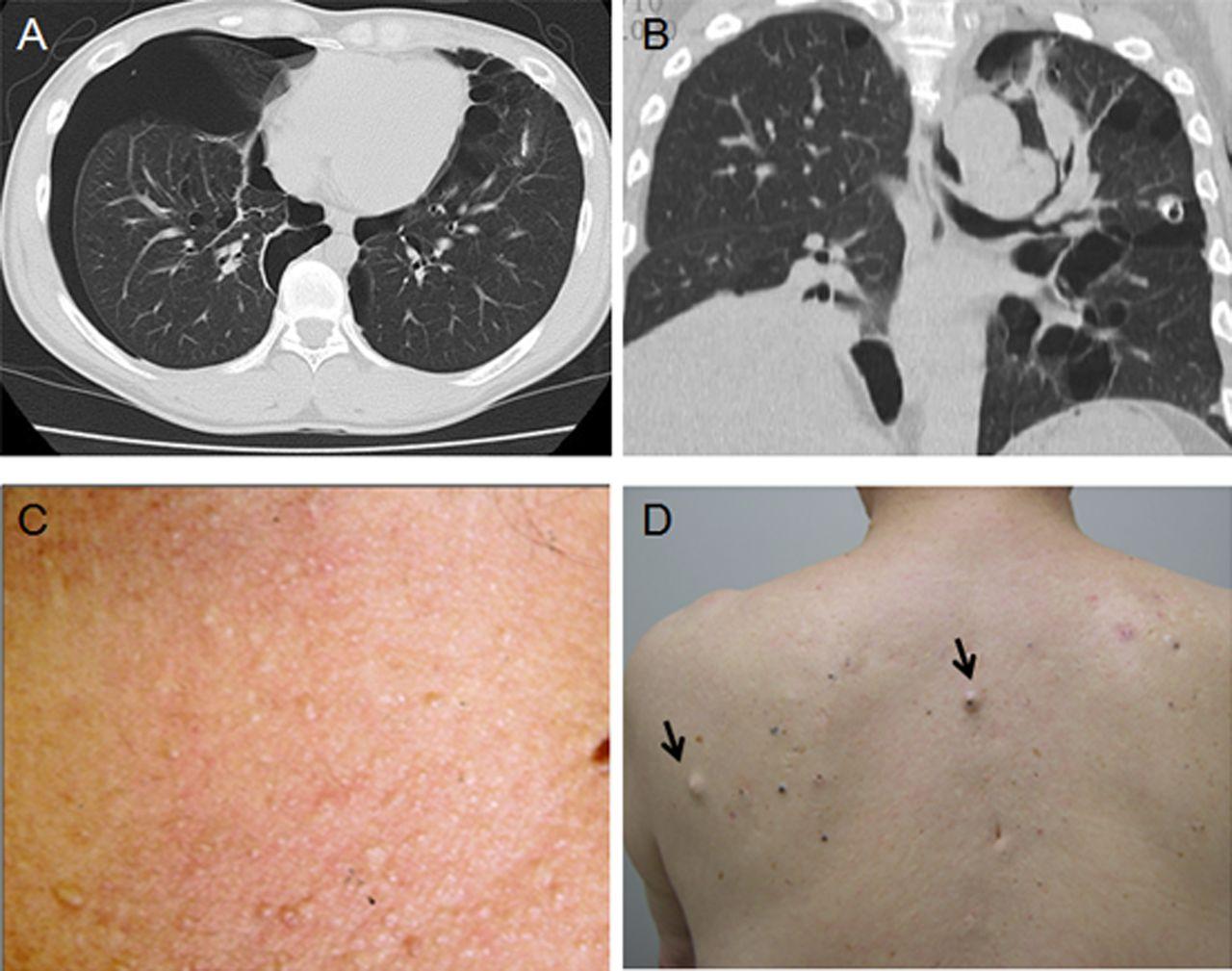 Birt–Hogg–Dubé syndrome: clinicopathological features of ...   1280 x 1009 jpeg 134kB