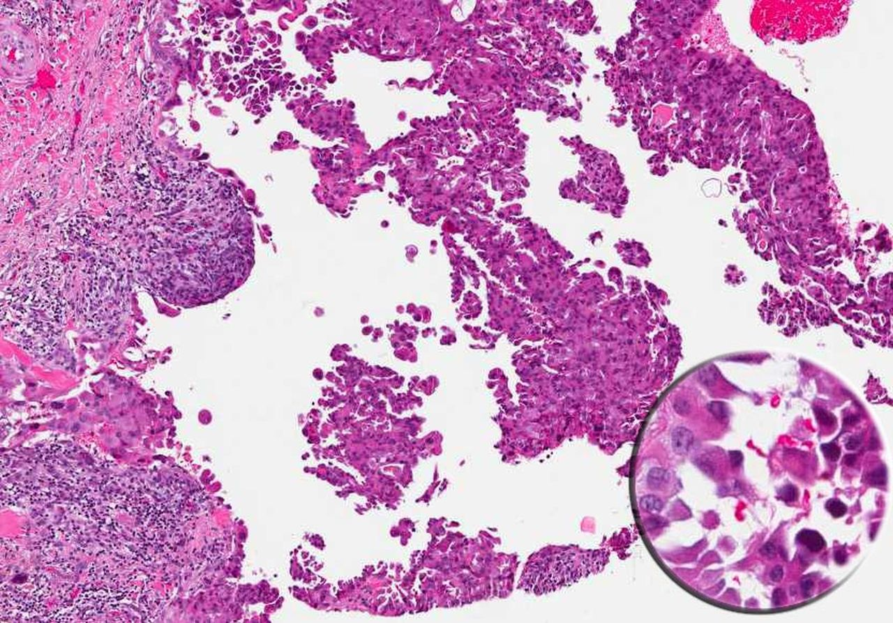 aggressive variants of follicular cell derived thyroid carcinoma  the so called  u2018real thyroid
