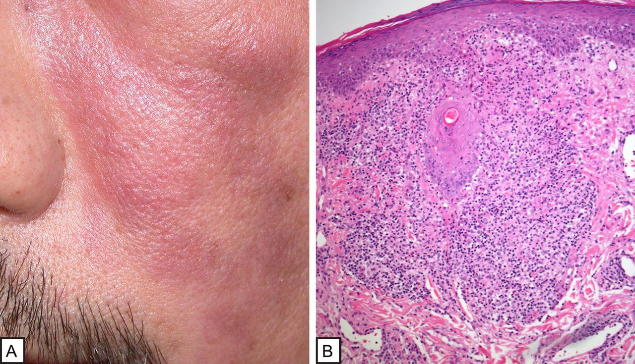 Non Infectious Granulomatous Conditions Of The Skin A
