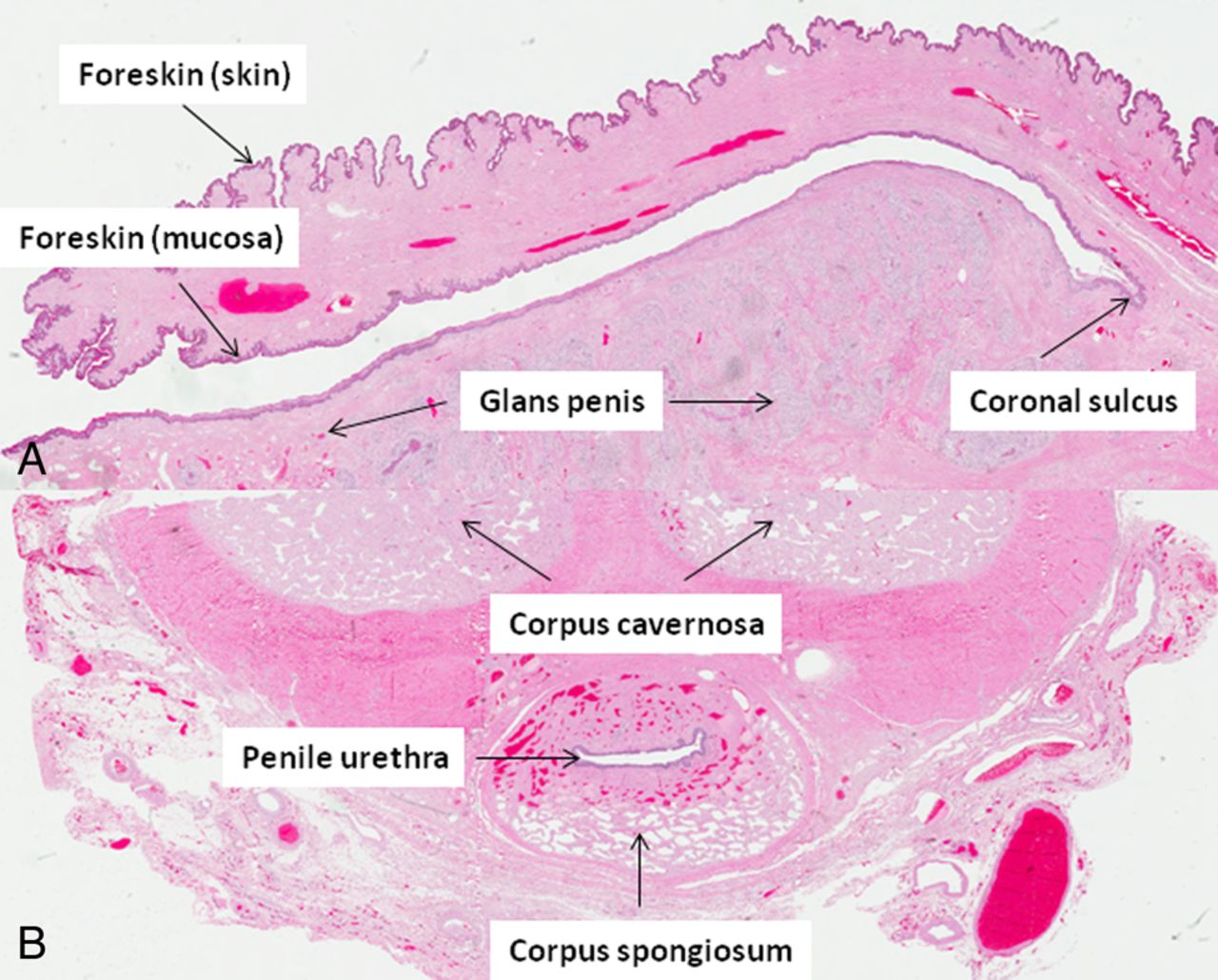 Review of in situ and invasive penile squamous cell carcinoma and ...