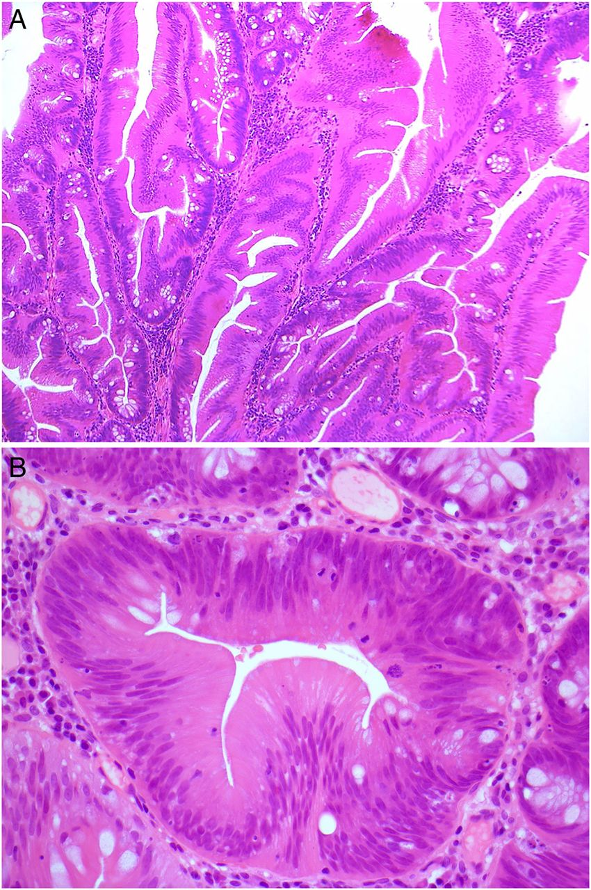 traditional serrated adenoma  tsa   morphological questions  queries and quandaries