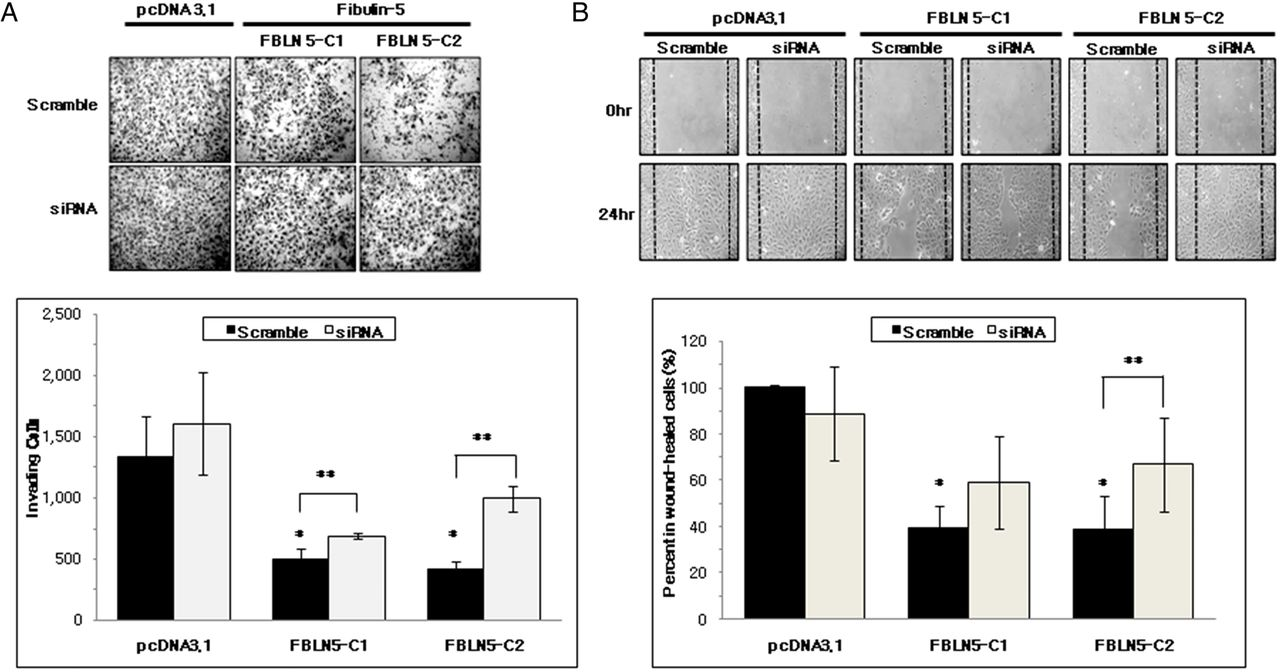 Fibulin-5 is a tumour suppressor inhibiting cell migration and