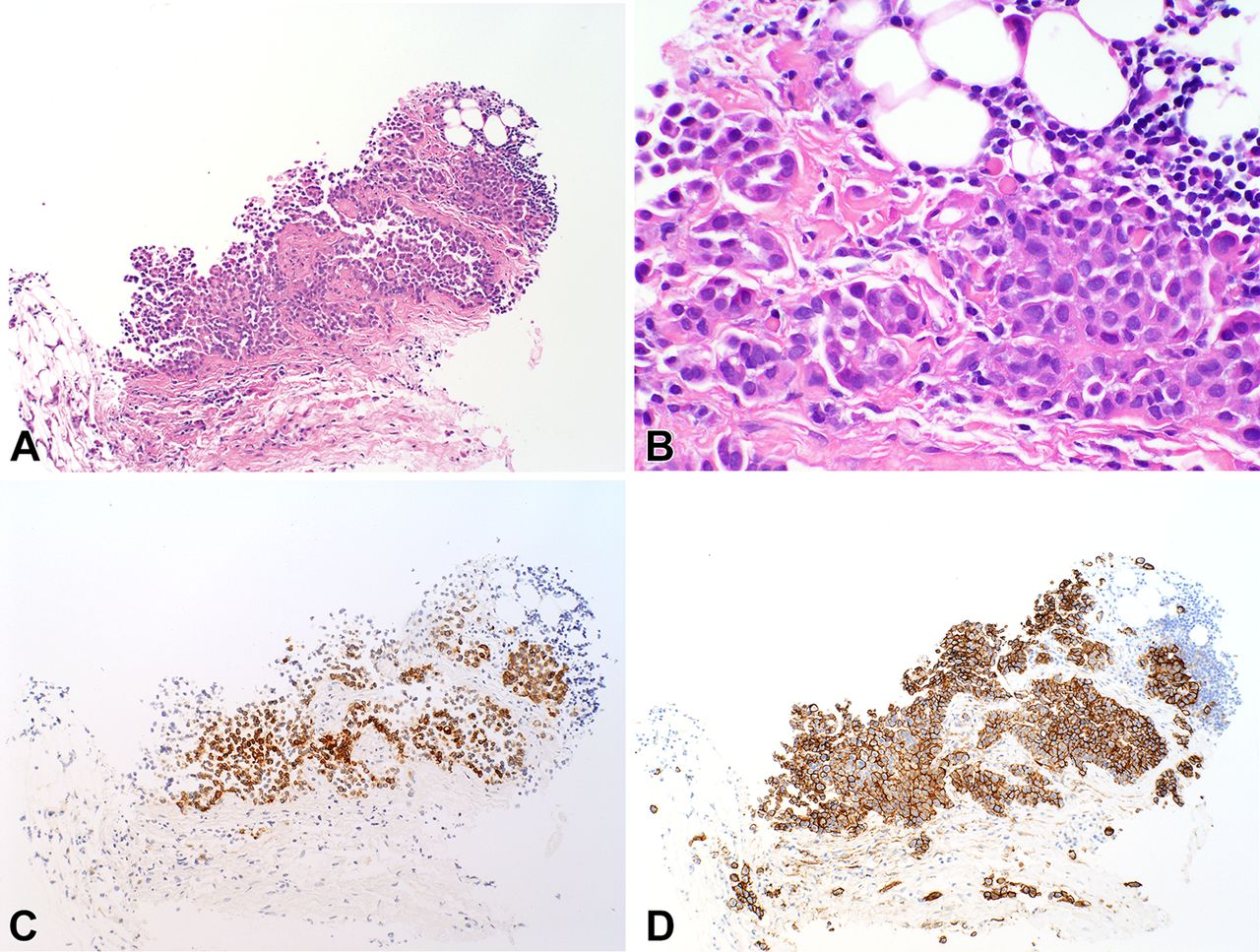 Malignant Peritoneal Mesothelioma And Crohn Disease Journal Of Clinical Pathology