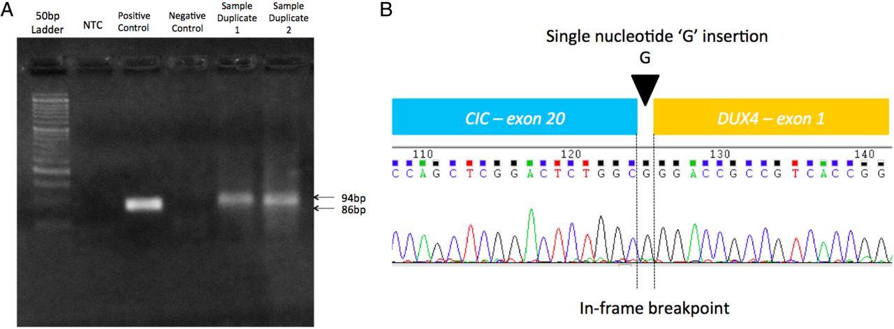 Novel exon–exon breakpoint in CIC-DUX4 fusion sarcoma