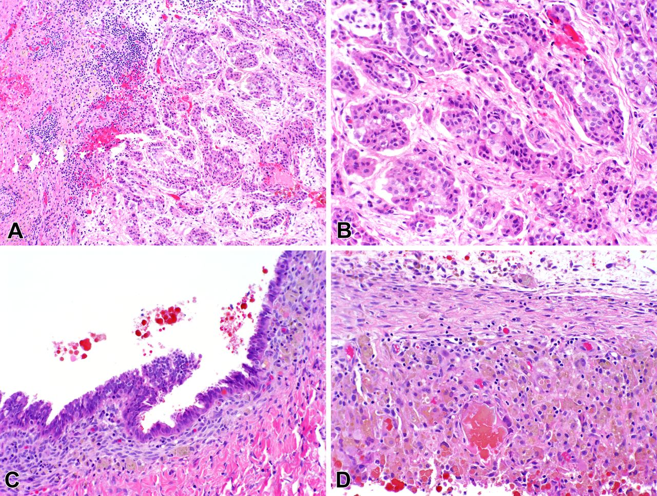 Malignant Peritoneal Mesothelioma In Patients With Endometriosis Journal Of Clinical Pathology