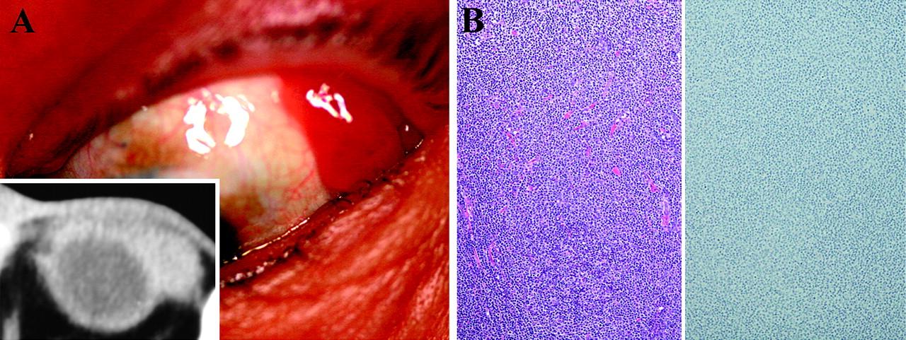 conjunctival melanoma pictures