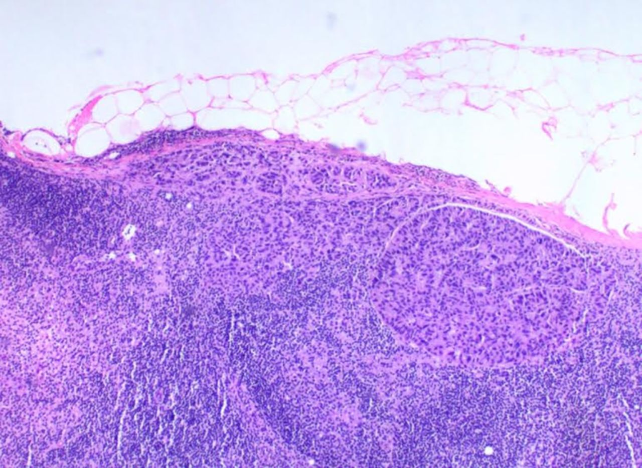 Image Result For What Is Metastatic Breasta