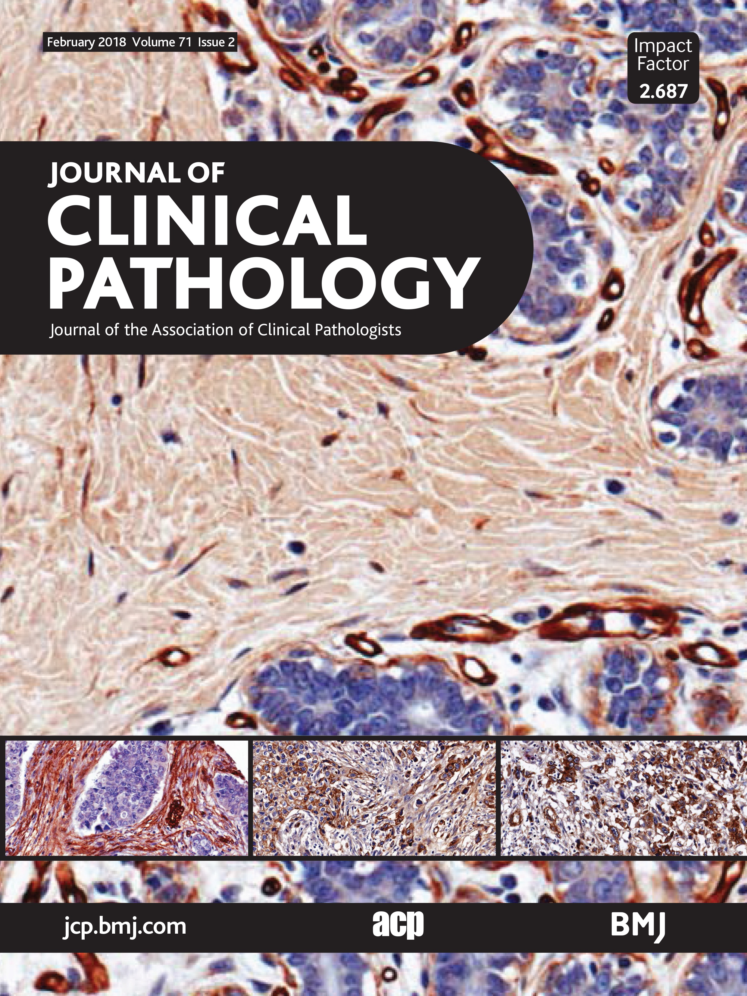 Cancer Stem Cells In Colorectal Cancer A Review Journal Of Clinical Pathology