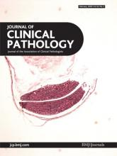 Journal of Clinical Pathology: 62 (2)