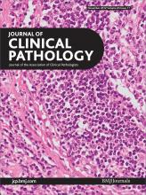 Journal of Clinical Pathology: 65 (11)