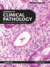 Journal of Clinical Pathology: 66 (1)
