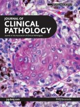 Journal of Clinical Pathology: 66 (4)