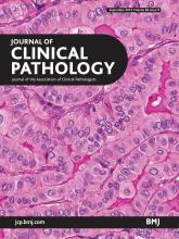 Journal of Clinical Pathology: 66 (9)