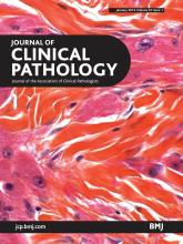 Journal of Clinical Pathology: 67 (1)