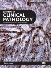 Journal of Clinical Pathology: 67 (5)