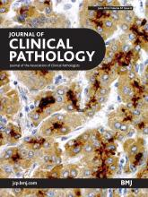 Journal of Clinical Pathology: 67 (6)