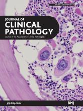 Journal of Clinical Pathology: 67 (7)