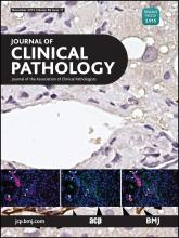 Journal of Clinical Pathology: 68 (11)