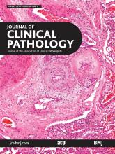 Journal of Clinical Pathology: 68 (2)