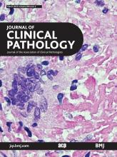Journal of Clinical Pathology: 68 (3)