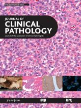 Journal of Clinical Pathology: 68 (5)