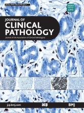 Journal of Clinical Pathology: 69 (1)