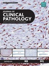 Journal of Clinical Pathology: 69 (10)