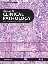 Journal of Clinical Pathology: 69 (4)
