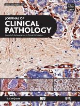 Journal of Clinical Pathology: 71 (2)