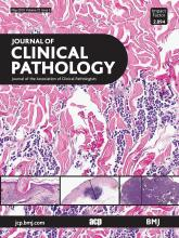 Journal of Clinical Pathology: 72 (5)