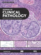 Journal of Clinical Pathology: 74 (11)