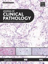 Journal of Clinical Pathology: 74 (6)